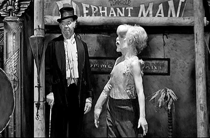 John Merrick è il deforme The Elephant Man (1980) strappato allo spettacolo di strada nella Londra vittoriana.
